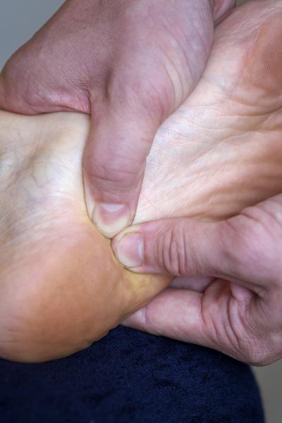 3. Heel Pain