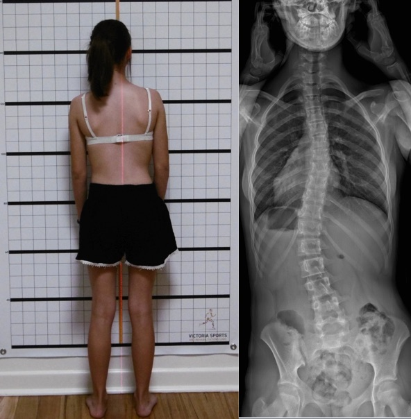 4 Curve Scoliosis | S Curve Scoliosis Example of Posture