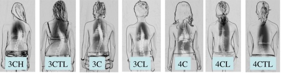 Scoliosis Curve Calssification