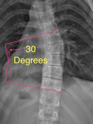 Cobb Angle Example | Scoliosis